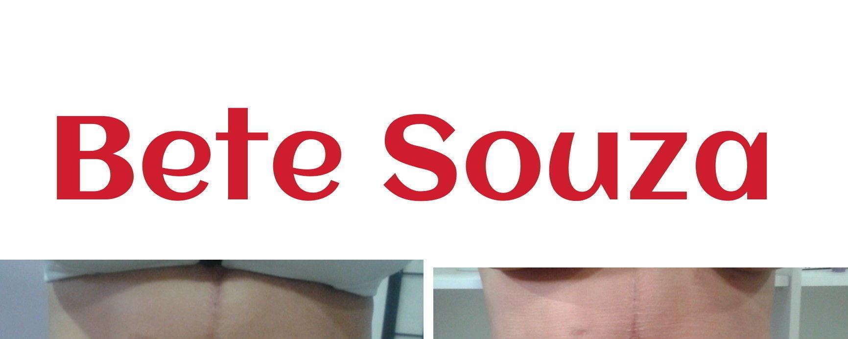 Redução de medidas 3 sessões de Lipocavitacao thermoterapia e massagem modeladora esteticista terapeuta