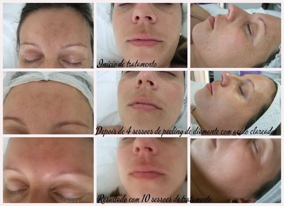 tratamento para manchas Peeling de diamante com aplicação de ácidos e tratamento home care esteticista