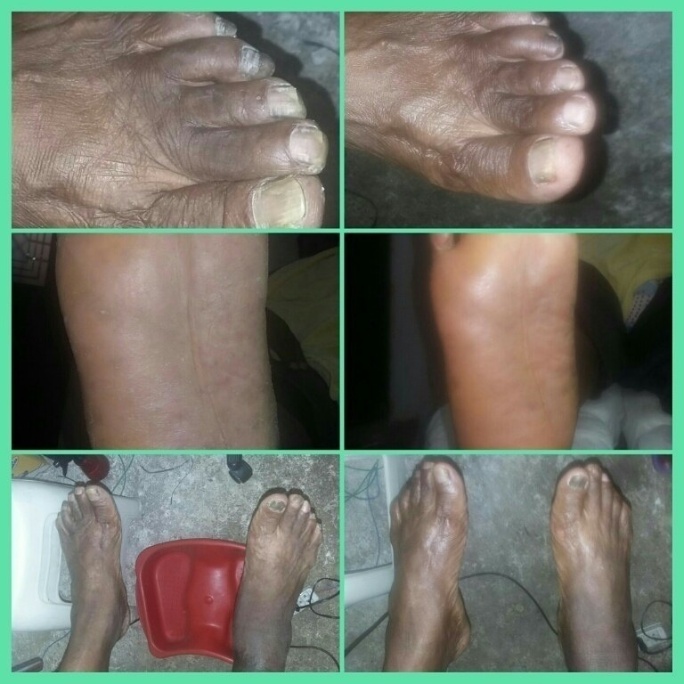 Antes e Depois  Esses são os pés de um cliente atendido por mim em home care. podólogo(a)