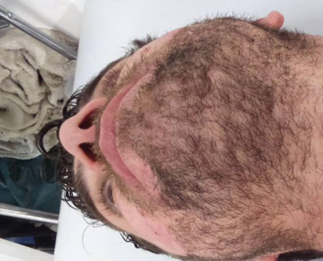 Depilação barba (antes)  depilador(a) designer de sobrancelhas micropigmentador(a)