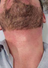depilação barba (depois) #barbamodelada depilador(a) designer de sobrancelhas micropigmentador(a)