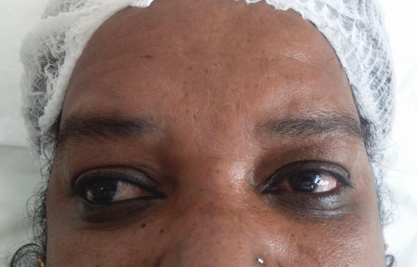 Micropigmentação de sobrancelhas (antes)  depilador(a) designer de sobrancelhas micropigmentador(a)
