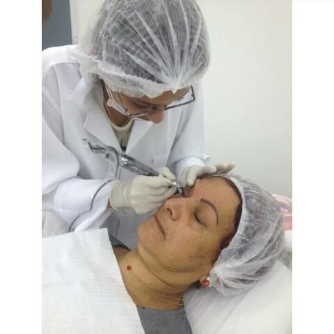 Aqui nessa foto estou fazendo uma micropigmentação no olho... micropigmentador(a) designer de sobrancelhas