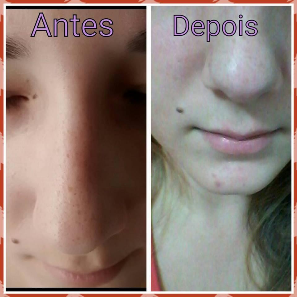 Antes e depois da limpeza de pele profunda maquiador(a) esteticista designer de sobrancelhas