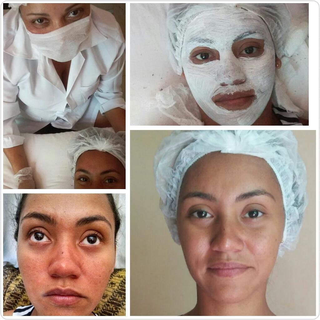 Limpeza de pele. limpeza de pele, pele morena, antes e depois, estética facial estética