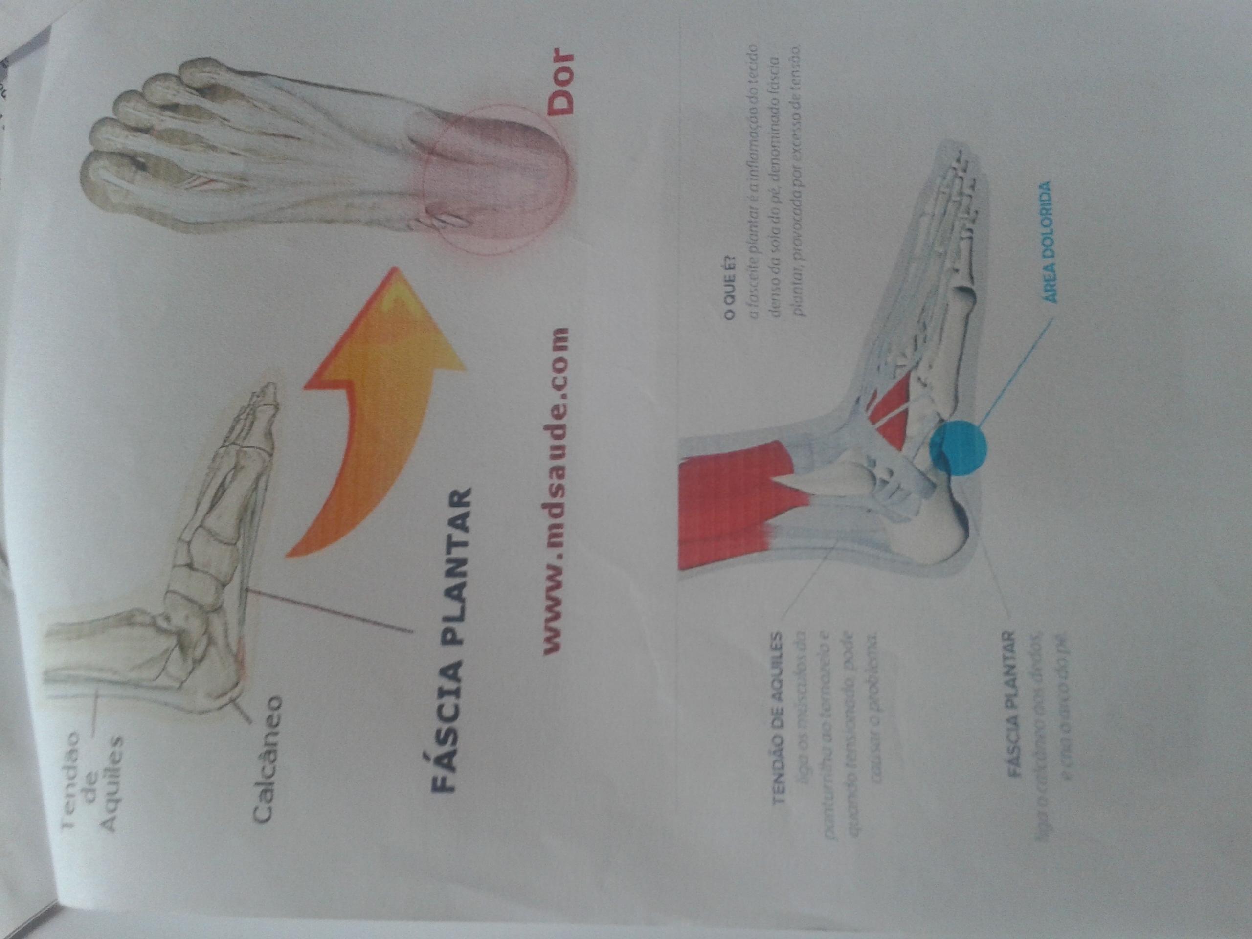 Esse foi uma pesquisa sobre fasceite plantar. podólogo(a)