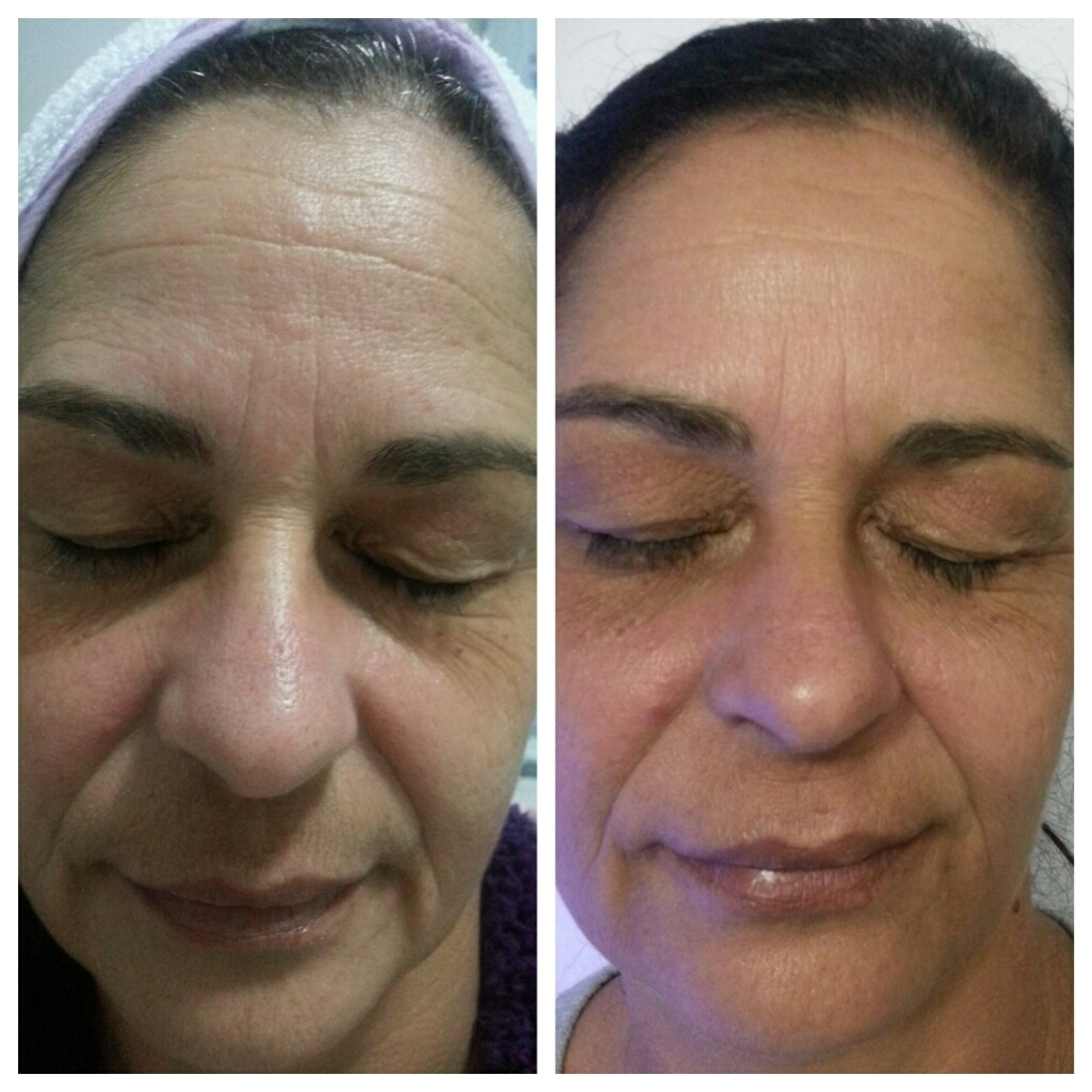 Rejuvenescimento - Revisage 3D  Antes e depois (8 sessões) esteticista designer de sobrancelhas depilador(a)