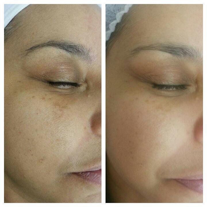 Tratamento para hipercromias com ácidos  Antes e depois  esteticista designer de sobrancelhas depilador(a)