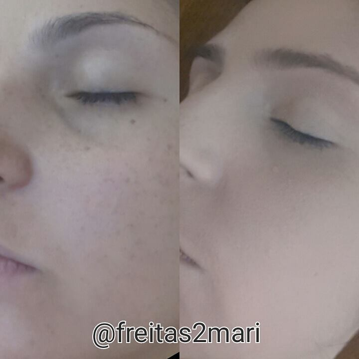 Preparação de pele  #Makeupbyfreitasmari #instamakeup #cosmedic #cosmedcs  #fashion #instagood #beautiful  #maquillaje #linda #antesedepois  maquiador(a)