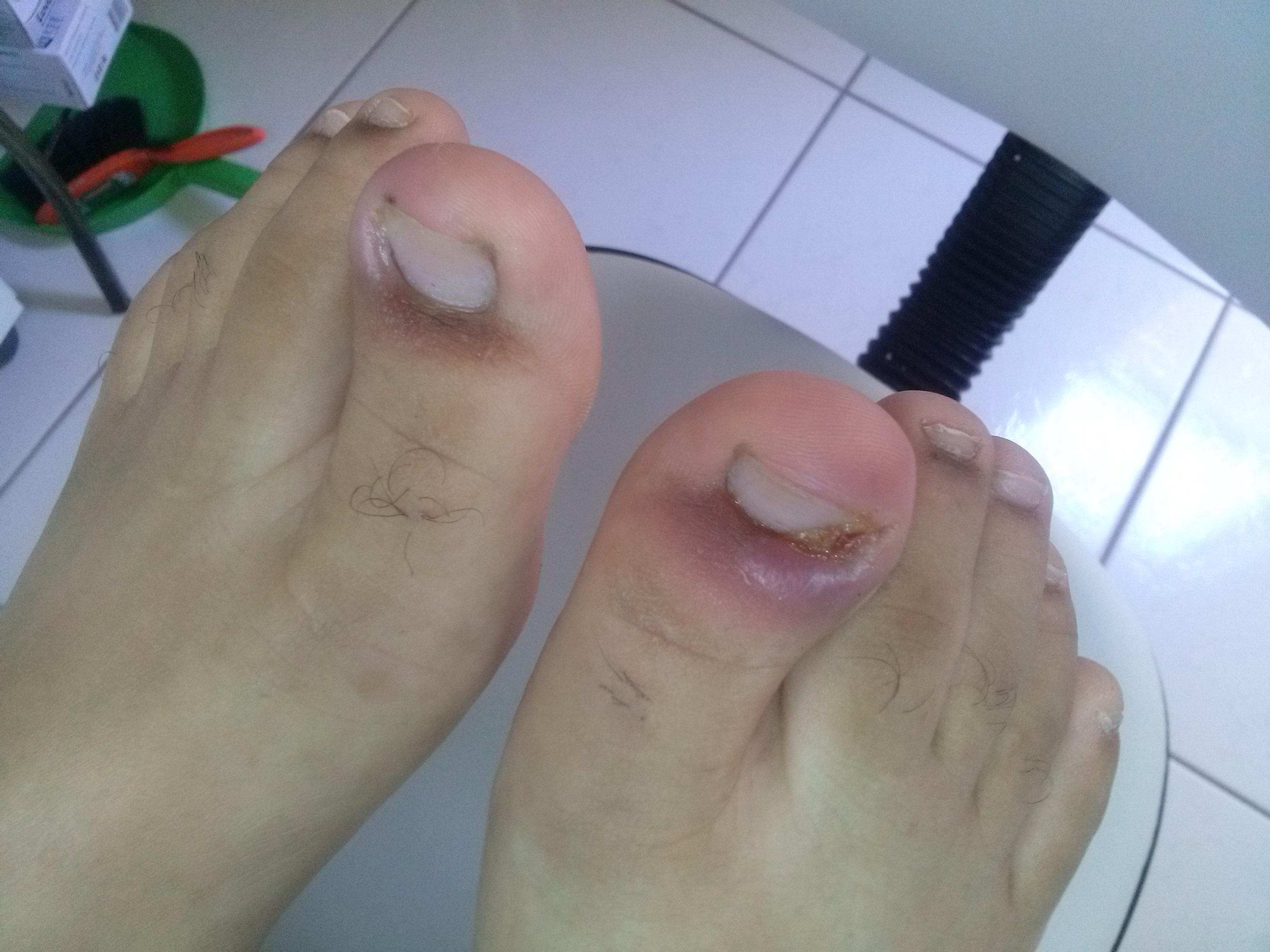 Granuloma bilaterais do hálux podólogo(a)