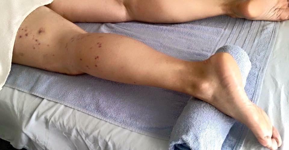 #drenagem linfática pos operatória  maquiador(a) esteticista massoterapeuta