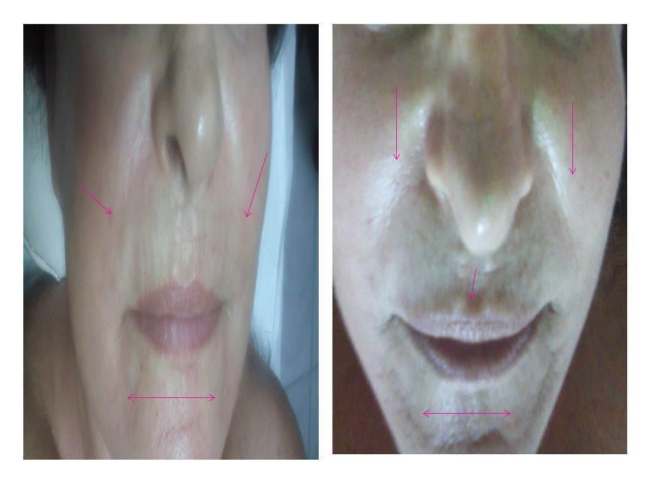 #rejuvenescimento#esteticaderesultado#lifiting#Botox Natural# preenchimento sem substâncias#Botox light# empresário(a) / dono de negócio consultor(a) em negócios de beleza designer de sobrancelhas dermoconsultor(a) massoterapeuta depilador(a) dermopigmentador(a) esteticista naturólogo(a) cosmetólogo(a)