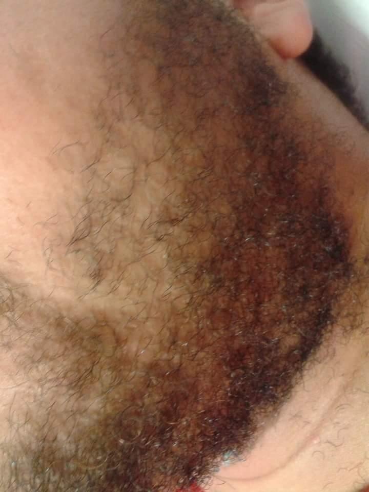 Barba antes depilador(a)