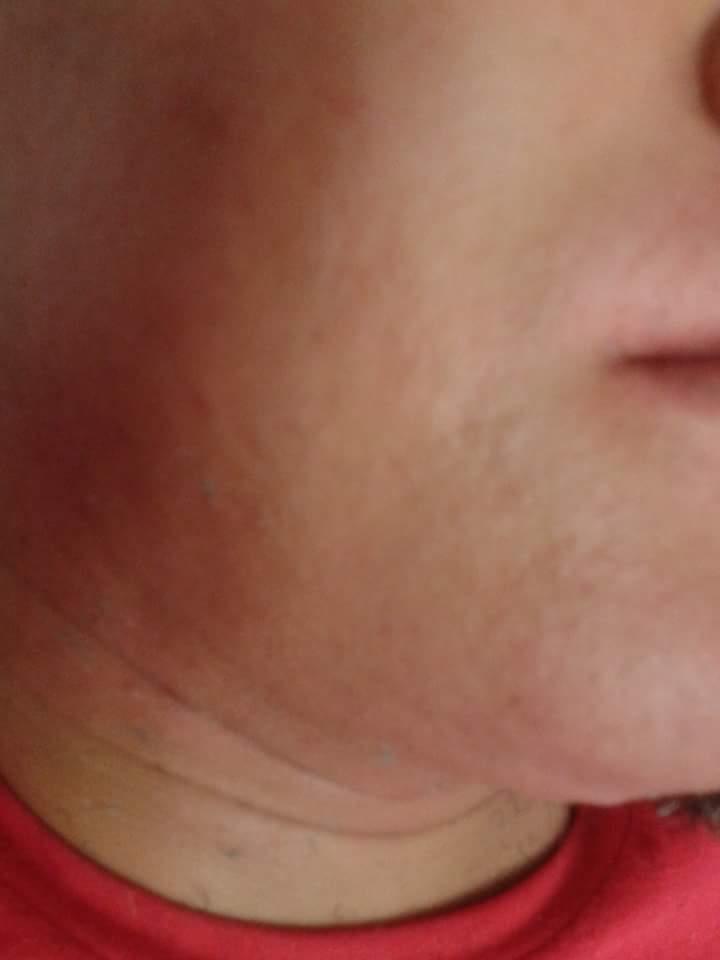 Barba depois  depilador(a)