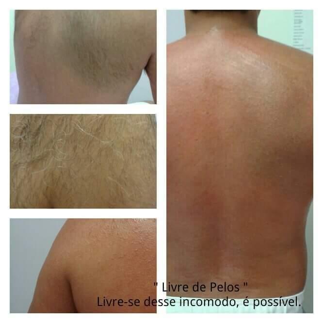 Costas antes e depois depilador(a)