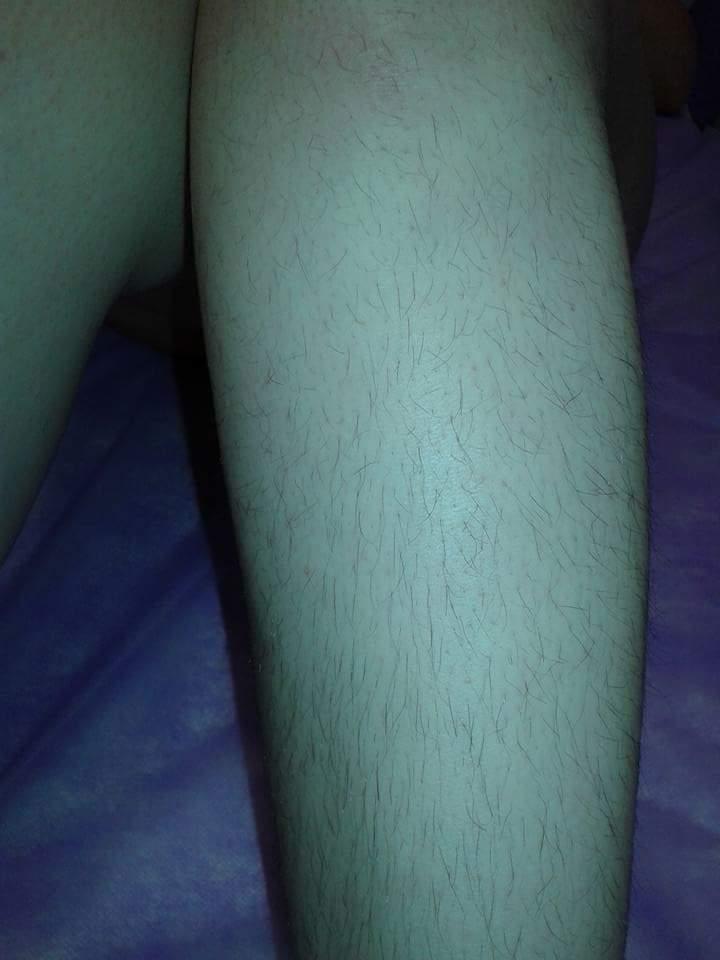 Perna antes depilador(a)