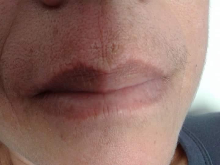 Buço com cera metade com e a outra semana pelo. depilador(a)