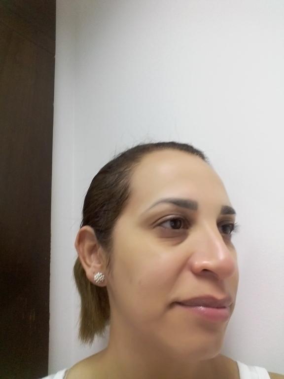 Após a aplicação da argila  depilador(a)