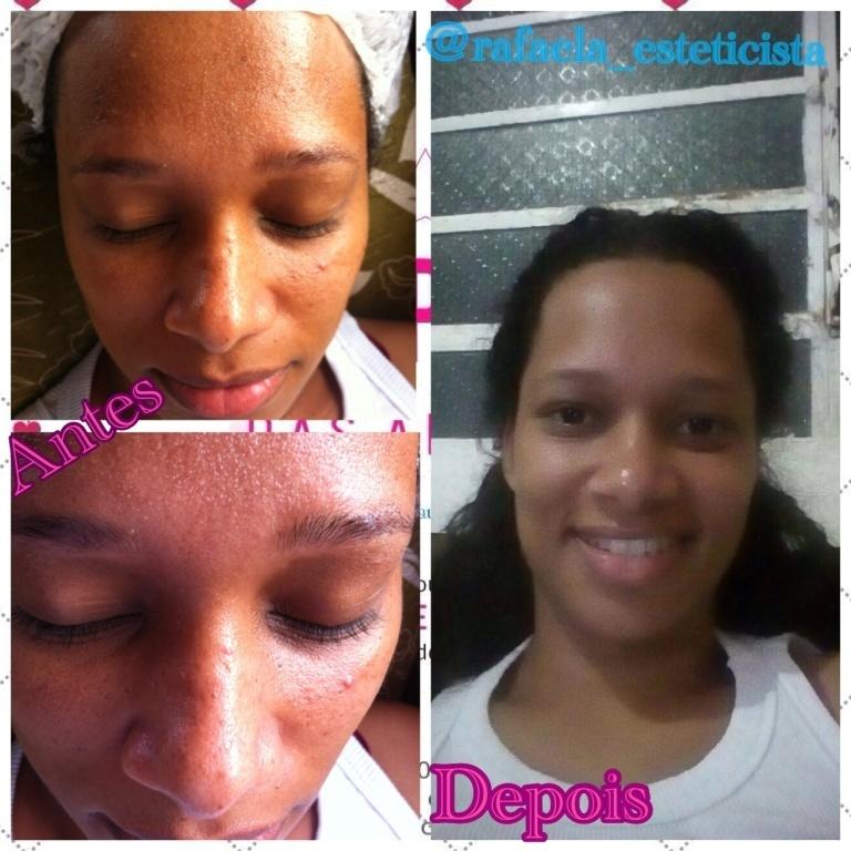 Olha o antes é depois, você já percebe a alegria da minha cliente linda, a Ilza recebeu a Limpeza de Pele Premium, é um Luxo só! Está em Pernambuco e precisa de cuidados estéticos  add meu whatszap (81) 9 99031465 quer ver mais?! Segue @rafaela_esteticista e curti a página Rafaela Araújo- Estética #rafaelaaraujoestetica #estetica #rosto #corpo #beleza #vaidade #altoestima #mulherespoderos #homensemulheresquesecuidam #servicosesteticis #atendimentovip #vip #fazcaraderica #cuidados #saudeebemestar #atendimentoemdomicilio esteticista massagista maquiador(a)