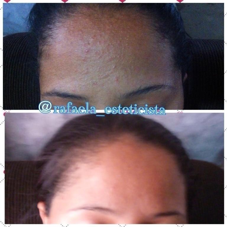 #limpezadepele #acne #cravos #comedoes #etc #limpezatop #peledebebe #peledepeincesa #fazcaraderica #rafaelaaraujoestetica #atendimentovip #atendimentoemdomicilio #recife #pe #estetica @rafaela_esteticista   esteticista massagista maquiador(a)