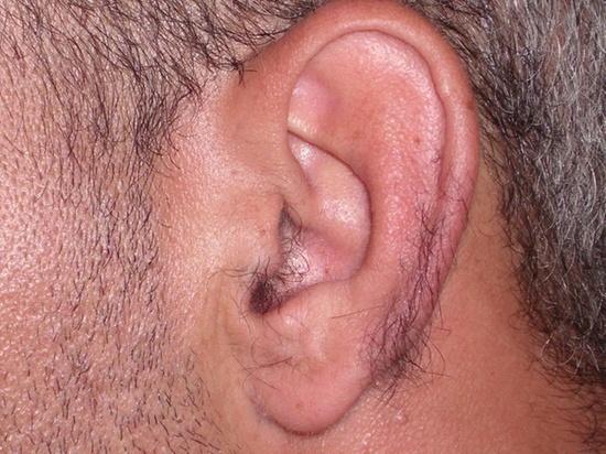 Depilação masculina  de orelhas depilador(a)
