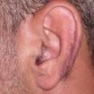 Depilação masculina  de orelhas