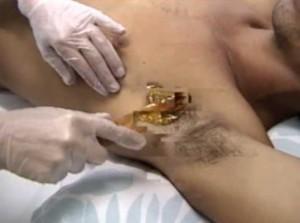 Depilação masculina de axilas depilador(a)