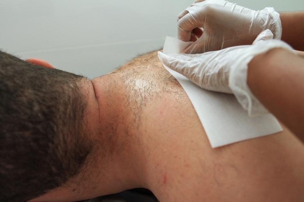 Depilação masculina de costas depilador(a)