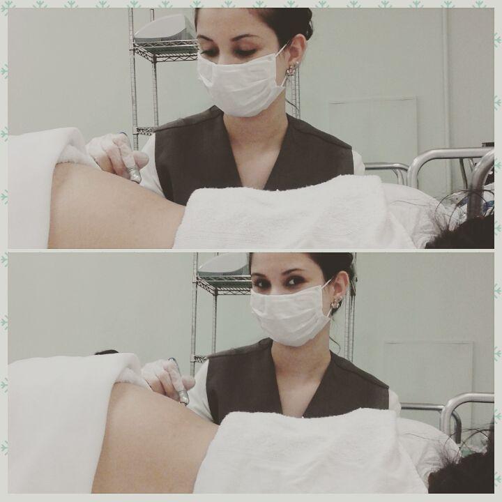 Peeling de diamante com ácido.  recepcionista esteticista maquiador(a) designer de sobrancelhas