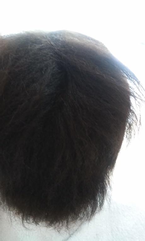 progressiva para cabelos afro( antes) massoterapeuta acupunturista outros