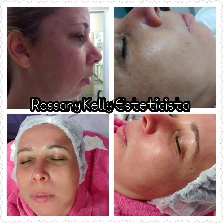 Clareamento e rejuvenescimento Facial. esteticista