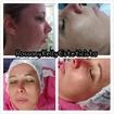 Clareamento e rejuvenescimento Facial.