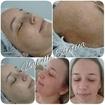 #tratamentoestetico Peeling