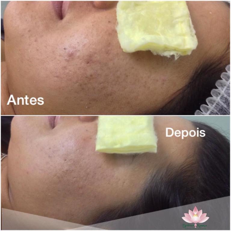 Limpeza de Pele! Que diferença, para a felicidade da cliente! esteticista depilador(a) massoterapeuta empresário(a)
