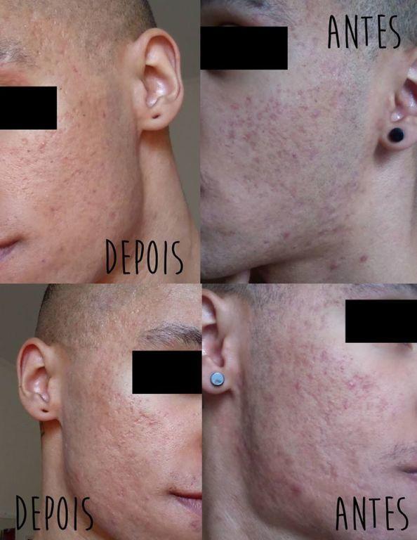 Peeling para remoção de marcas de espinhas! esteticista depilador(a) massoterapeuta empresário(a)