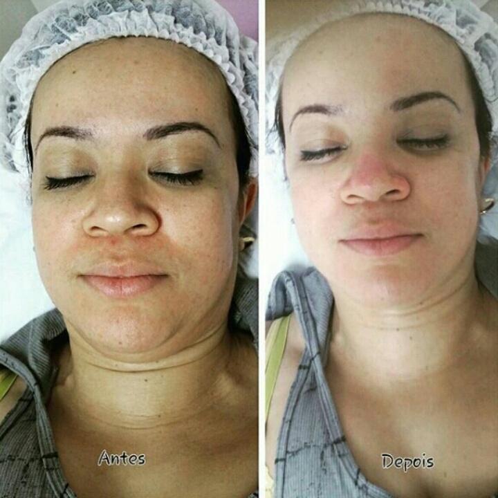 Limpeza de pele. esteticista