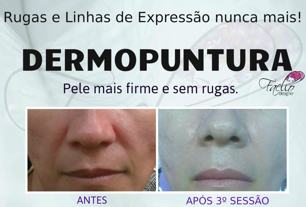 #dermopuntura #pelesemrugas #linhasdeexpressao #rejuvenescimento #faellodesigner micropigmentador(a) designer de sobrancelhas maquiador(a) dermopigmentador(a)