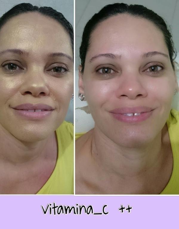 Aplicação de Vitamina C #rostoiluminado esteticista designer de sobrancelhas