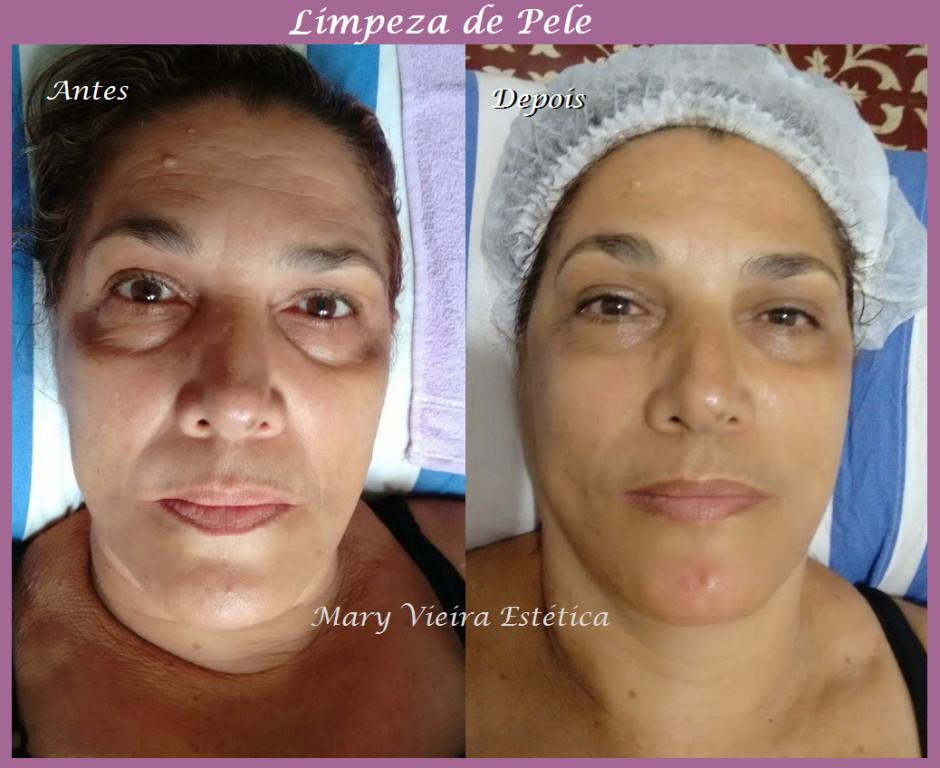 Limpeza de pele + Peeling Ultrassonico. esteticista designer de sobrancelhas