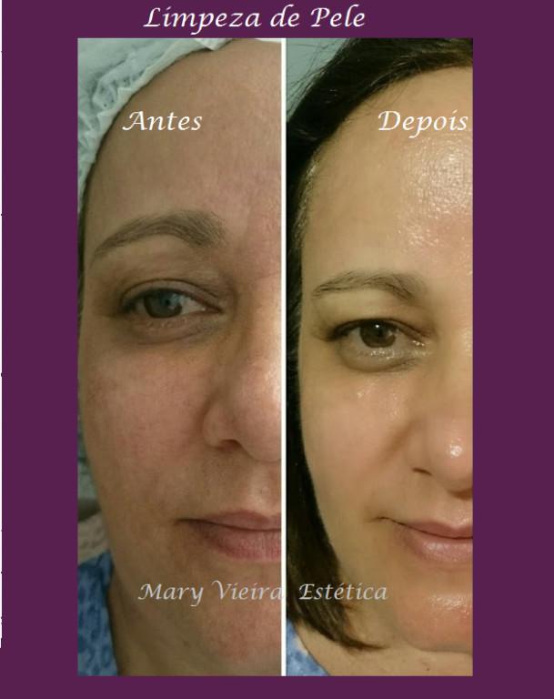 Mais uma  cliente super feliz com sua pele limpinha! #peledepessego esteticista designer de sobrancelhas