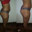 Redução de medidas e melhora do contorno corporal, com 5 sessões de massagem estimulante e dermocosméticos.