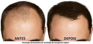 tratamento para calvice esteticista acupunturista