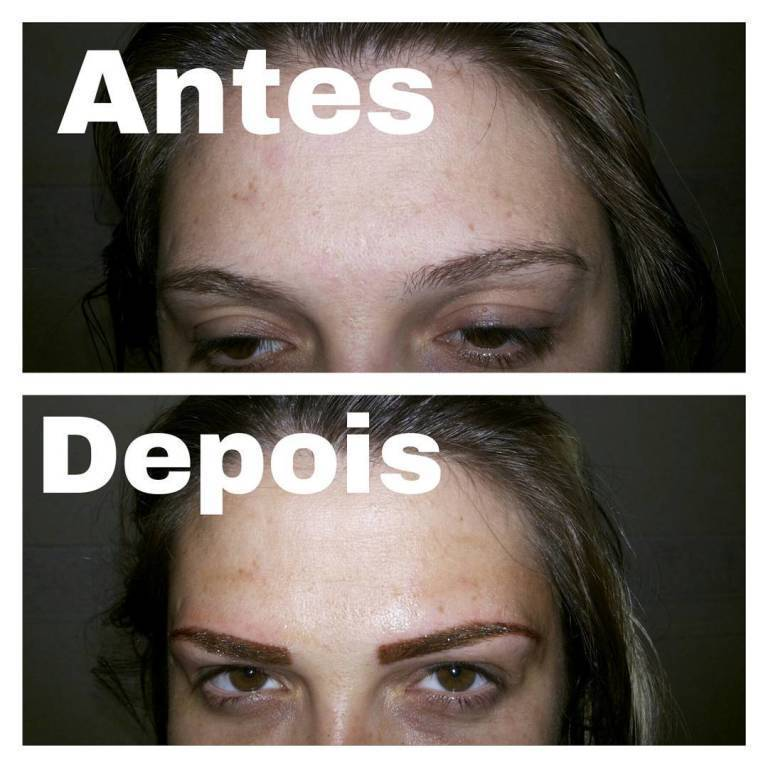 dermopigmentador(a)