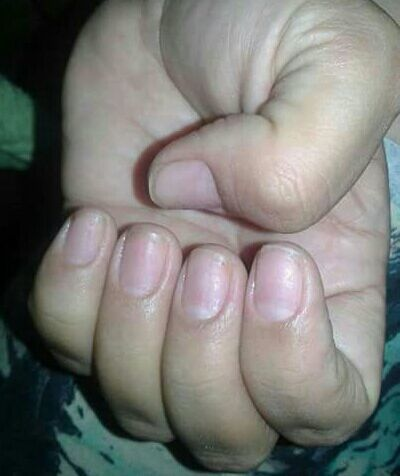 Antes e depois do alongamento de unha manicure e pedicure podólogo(a) designer de sobrancelhas depilador(a)