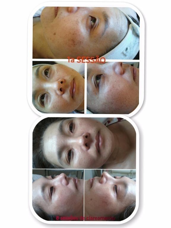 esteticista depilador(a) massagista