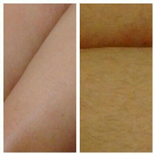 Antes e Depois Depilação perna completa estética depilador(a) designer de sobrancelhas