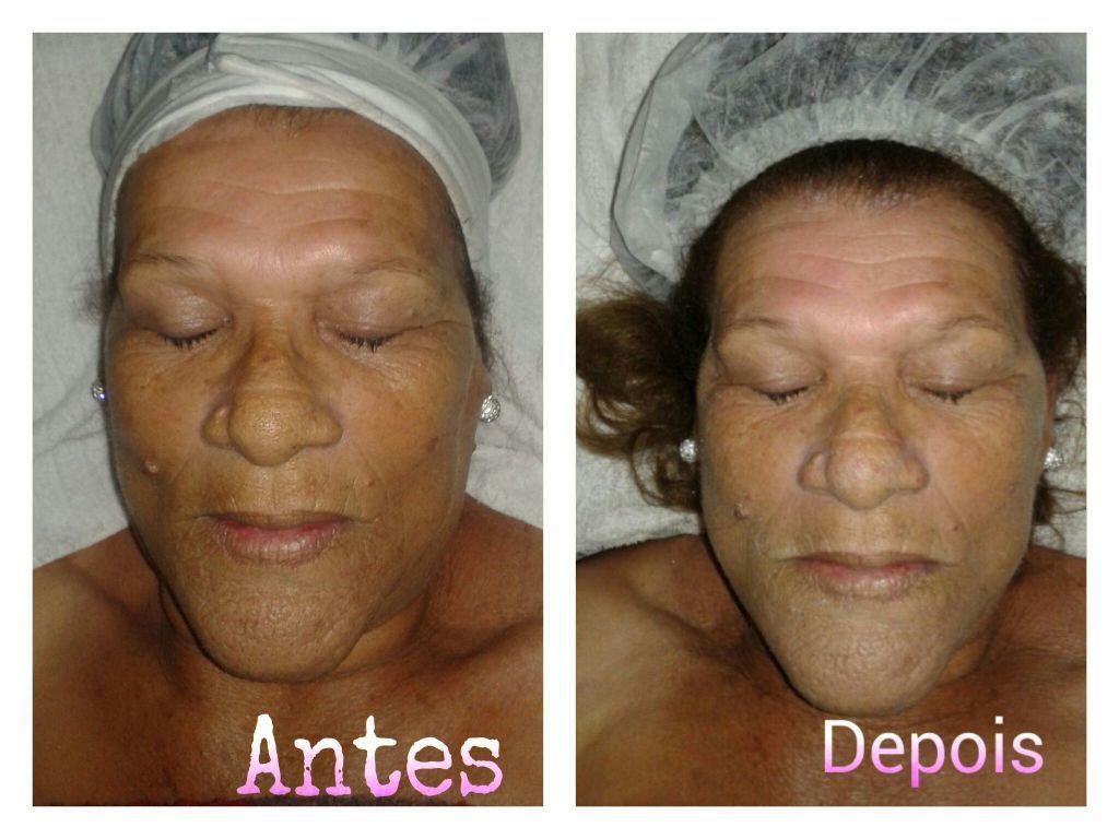 Limpeza de pele estética esteticista
