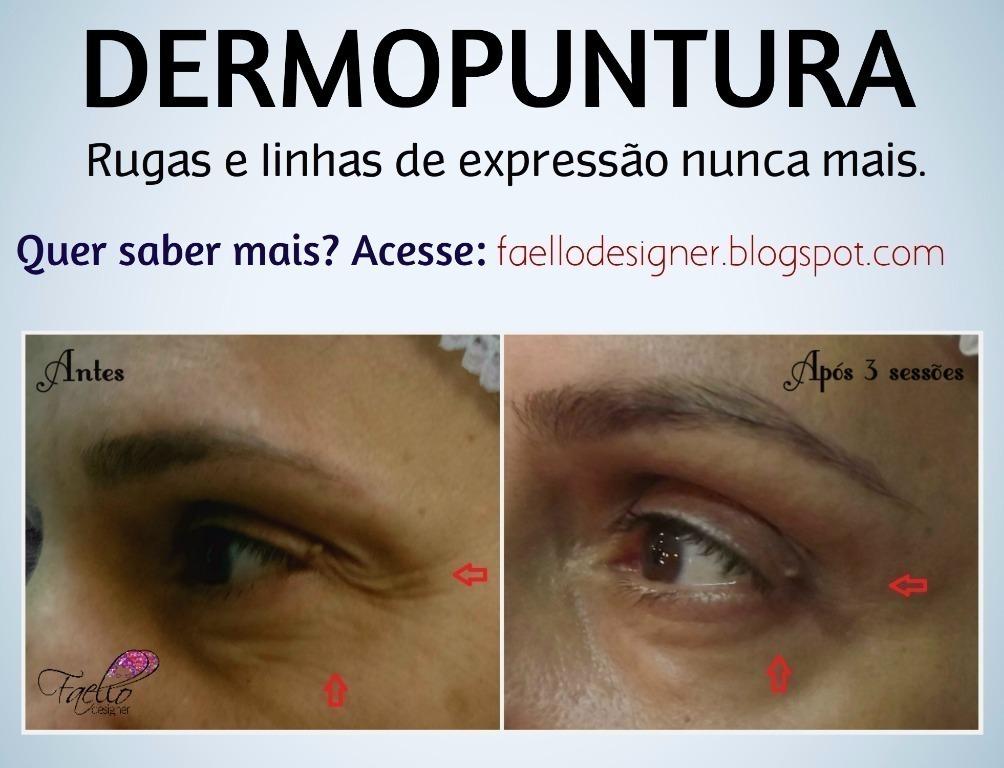 #dermopuntura #linhasdeexpressão #rugasnuncamais #faellodesigner micropigmentador(a) designer de sobrancelhas maquiador(a) dermopigmentador(a)