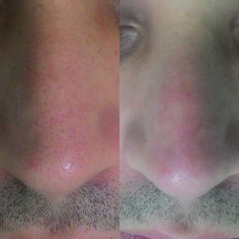 Limpeza de Pele Profunda \ Higienização Facial #esteticafacial #tratamentofacial #limpezadepeleprofunda #limpezadepele #higienizaçãofacial #cuidadoscomapele estudante (esteticista) assistente esteticista cosmetólogo(a) esteticista designer de sobrancelhas estudante (designer sobrancelha) estudante (depiladora)