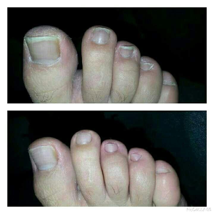 unha podólogo(a) manicure e pedicure